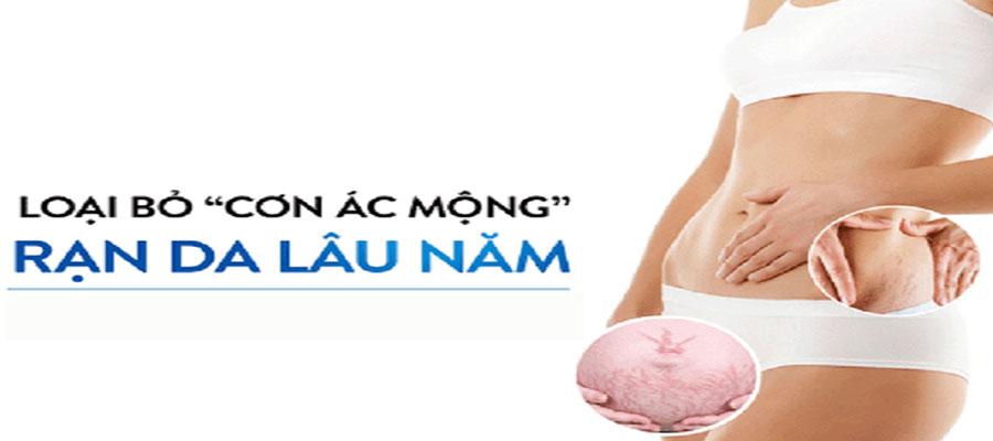 Cac-nguyen-nhan-gay-ran-da