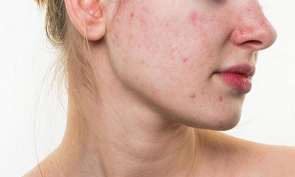 Nguyên nhân và cách điều trị sẹo lõm, sẹo rỗ